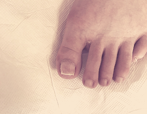 Felpúposodott köröm - speciális láb és körömkezelés