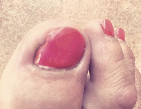 Benőtt vörösre festett köröm