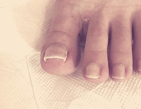 Felpúposodott köröm - speciális lábápolás